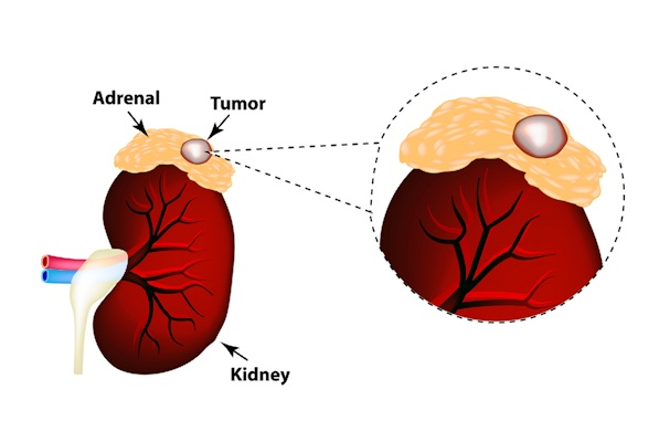 stage 4 adrenal cancer