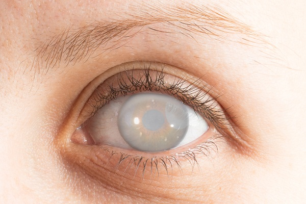 cataracts causes
