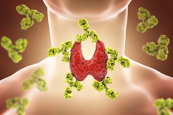 overactive thyroid or hyperthyroidism causes