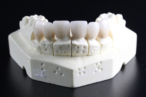cerec dental crown