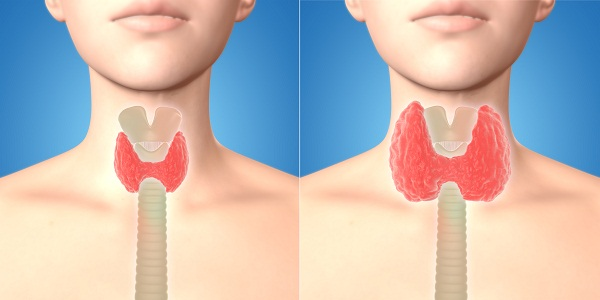 overactive thyroid diagnosis
