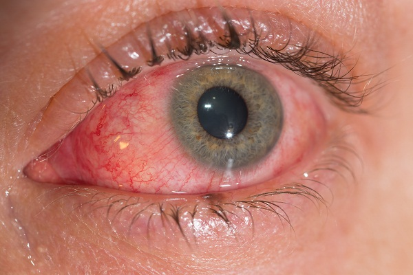 diagnosis of conjunctivitis