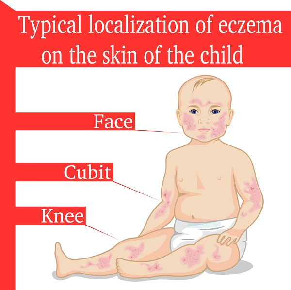 eczema symptoms in infants