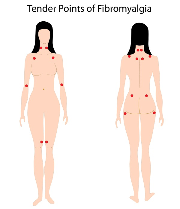fibromyalgia pain points or fibromyalgia trigger points