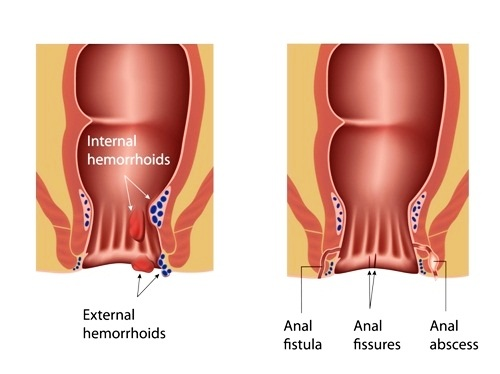 internal hemorrhoid look like