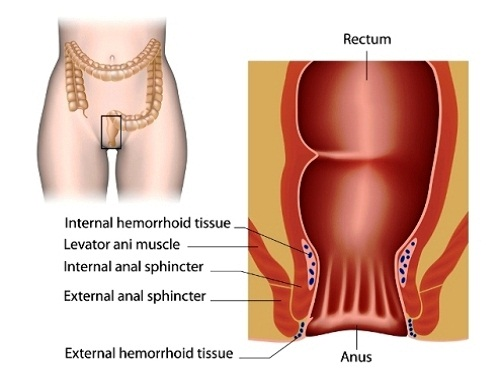 external hemorrhoid look like