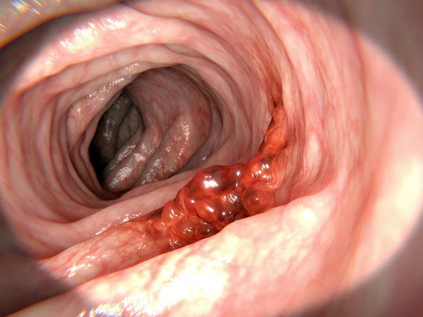 hemorrhoids vs colon cancer