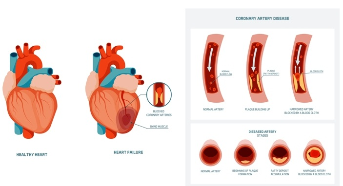 how is coronary heart disease diagnosed