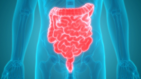 irritable bowel syndrome or ibs diagnosis
