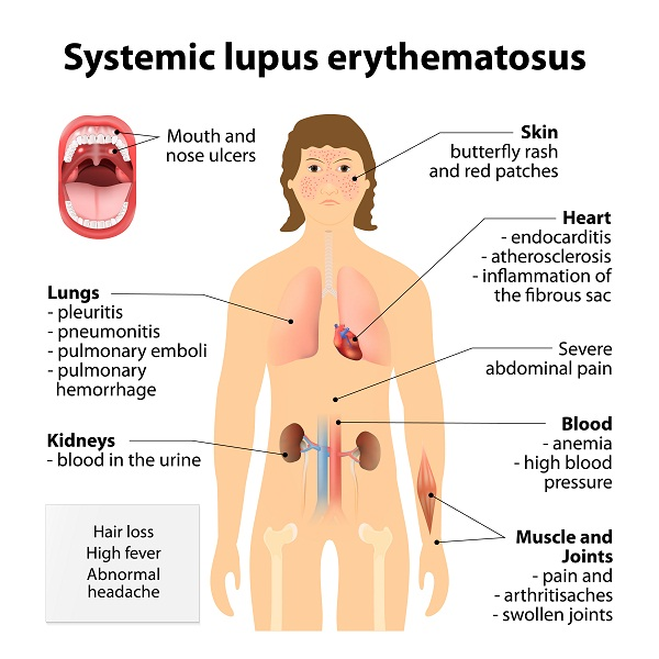 complications of lupus