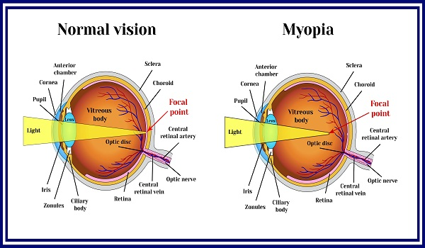 myopia causes, risk factors and symptoms