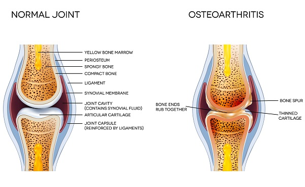 causes and risk factors of osteoarthritis