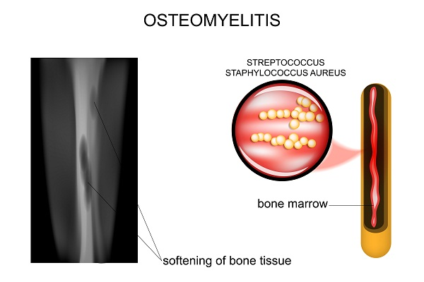 what is osteomyelitis or bone infection