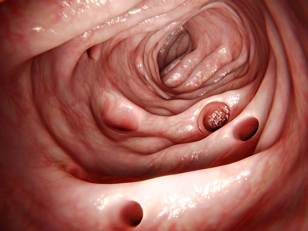 overview of diverticulitis