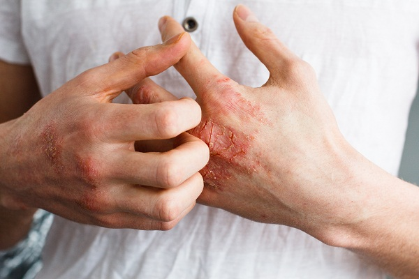 overview of eczema