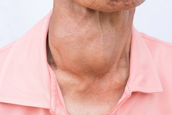 overactive thyroid or hyperthyroidism overview