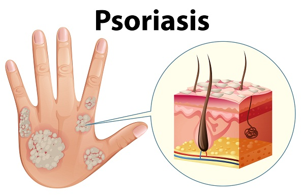overview of psoriasis and its types