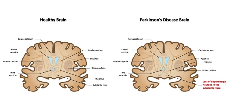 parkinson's disease or syndrome overview