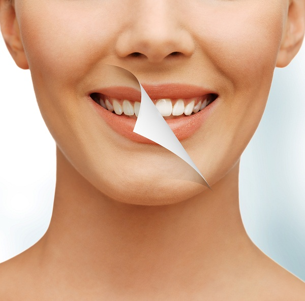 tooth sensitivity prevention