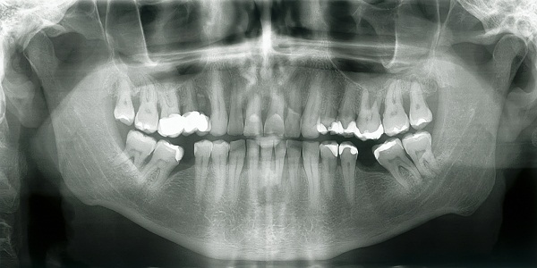 read dental X Rays or radiographs for cavities