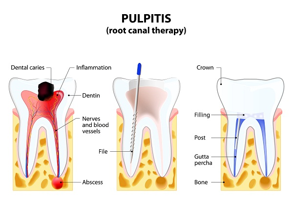 root canal cavities Treatment