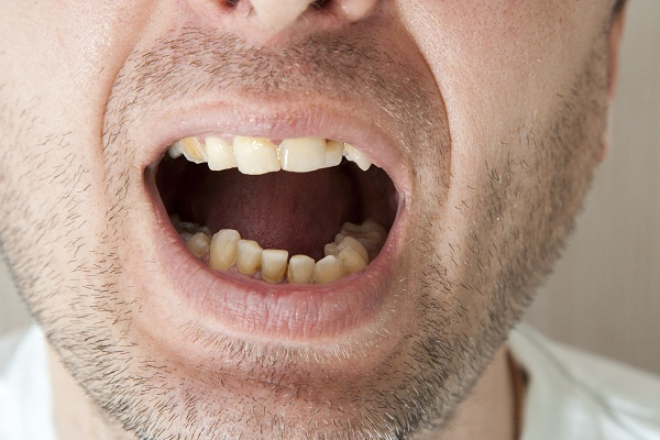signs and symptoms of dental caries