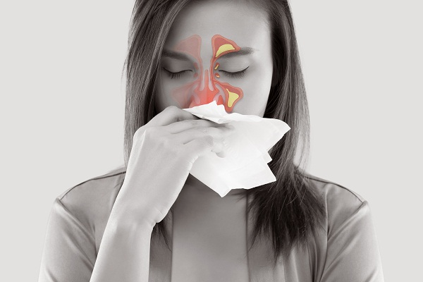 sinusitis or sinus infection
