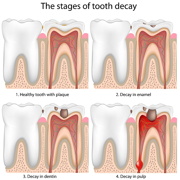 stages of dental caries or tooth decay
