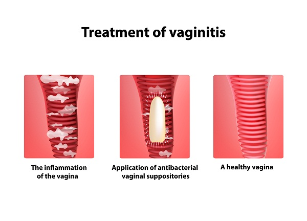 what is the treatment of vaginitis