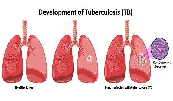 causes and risk factors for tuberculosis TB