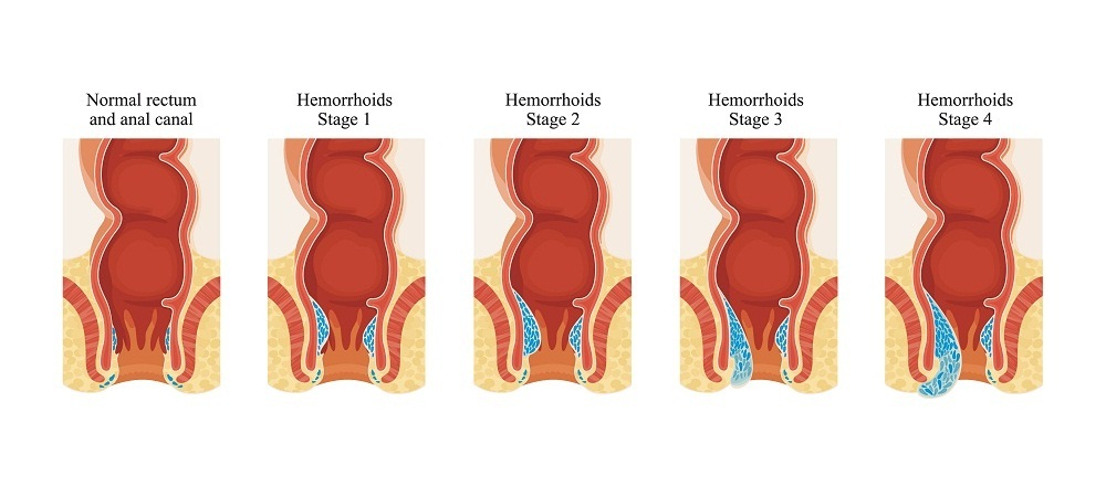 what are hemorrhoids