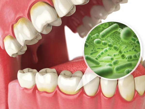 bacterias and viruses around tooth