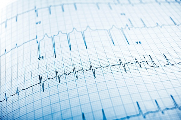 what is an electrocardiogram (ecg or ekg test)?