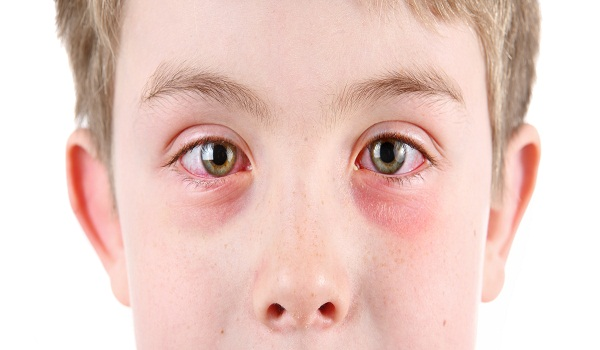 what is conjunctivitis