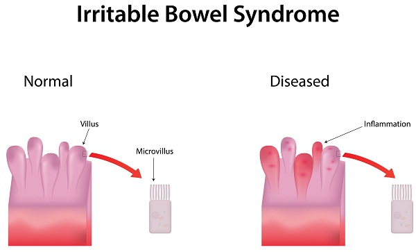 what is irritable bowel syndrome or ibs