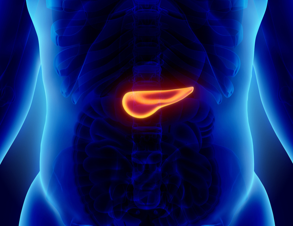 pancreatic cancer overview