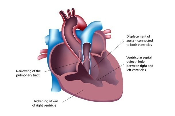 What is ventricular septal defect