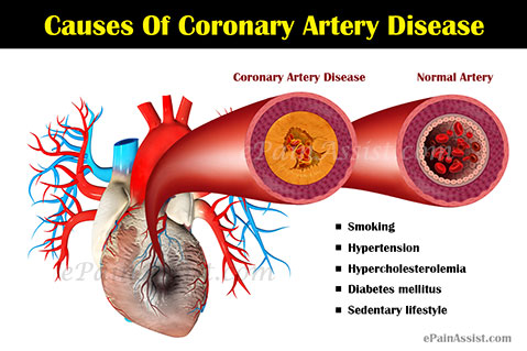 What Are The Causes Of Coronary Artery Disease?