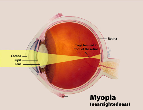 What is Myopia or Nearsightedness?