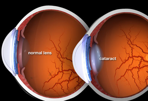How Cataracts Affect Your Lens