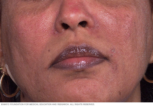 What Causes Rosacea?