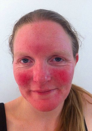 My Experiences With Rosacea
