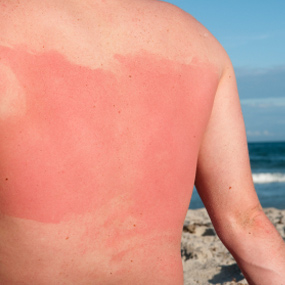 Risk Factors for Skin Cancer- Are you at Risk of Getting Skin Cancer?