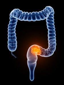 Tests and Diagnosis of Colorectal Cancer