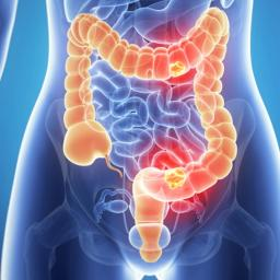 Causes of Colorectal Cancer