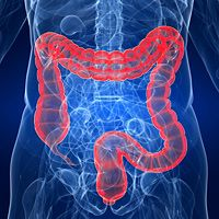 Prevention of Colorectal Cancer