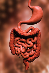 Causes of Diverticulitis