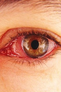 What are the Symptoms and Complications of Conjunctivitis?