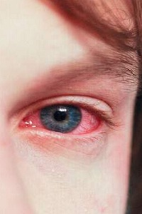 What are the Causes and Risk Factors of Conjunctivitis?
