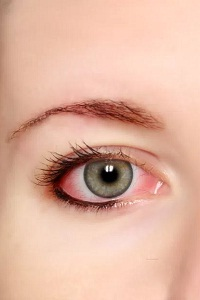 How is Conjunctivitis Diagnosed?